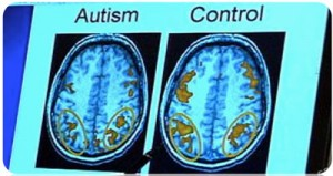 how autistic traits in children impact their brains